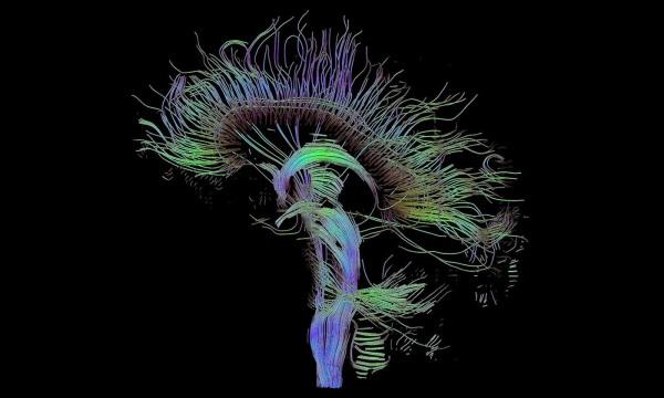 idea_sized-dti-sagittal-fibers